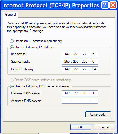 Connecting your PC to a LAN – Windows XP: Technical
